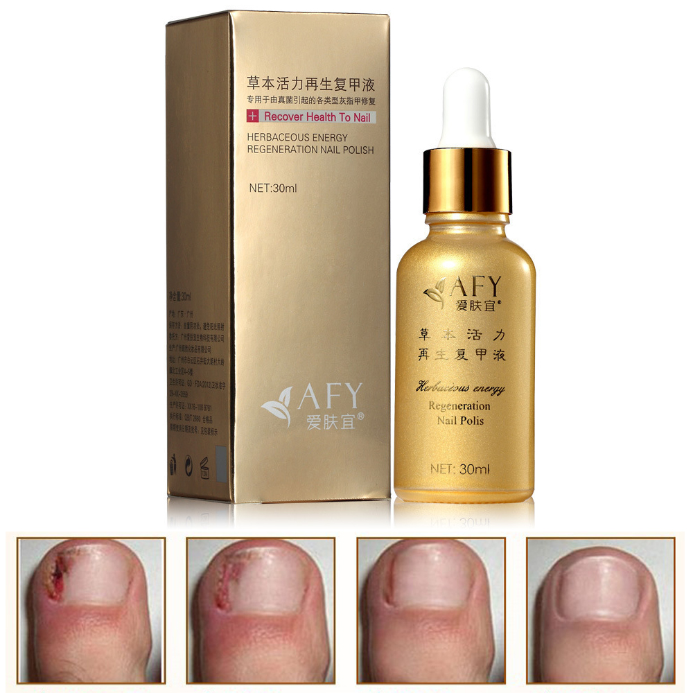 2015 Fungal Nail Treatment Essence Oil Hand and Foot Whitening Toe ...