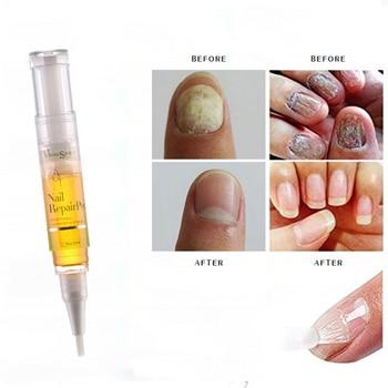 5ML Fungal Nail Repair Pen Effective Anti Fungal Nail Infection Biological Repair Restores Healthy Toe Nail Care TSLM2 1