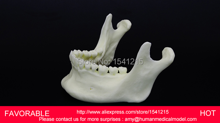 DENTAL MATERIALS TOOTH PATHOLOGY DISSECTION MODEL DECAYED TOOTH GINGIVAL SIMULATION MODEL OF MANDIBULAR TEETH-GASEN-DEN030 advanced simulation model of mandibular tissue decomposition simulation model of mandibular structures