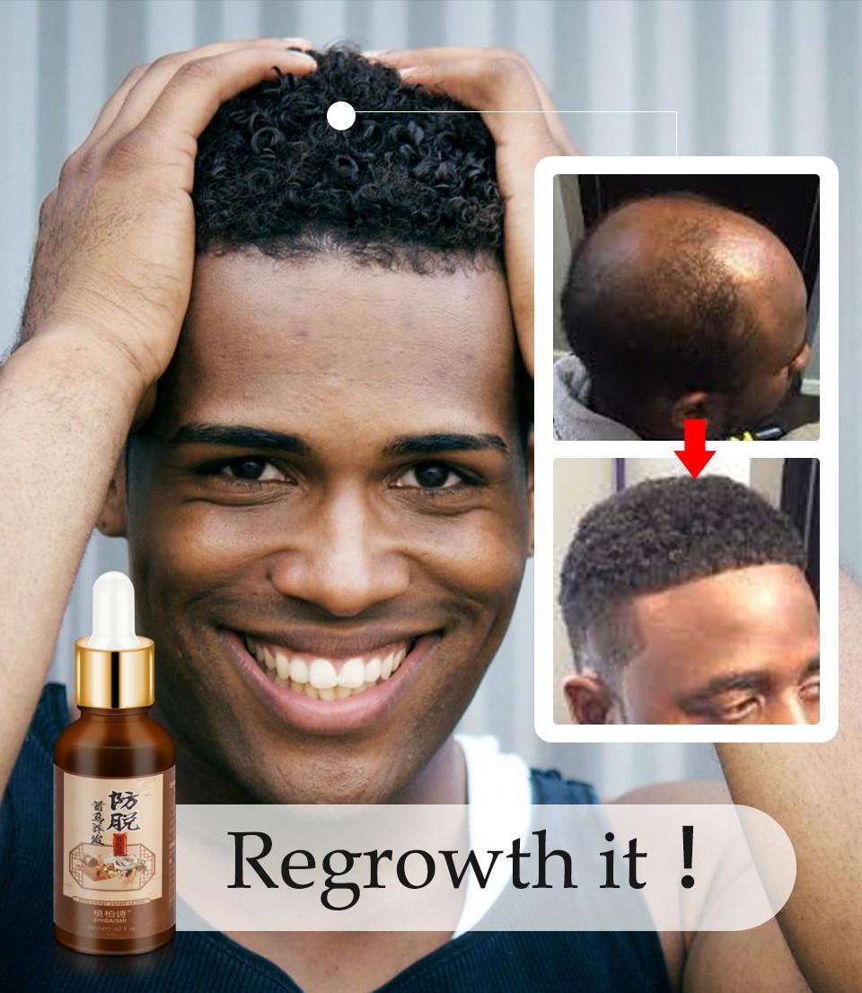 Fast Hair Growth Remedy