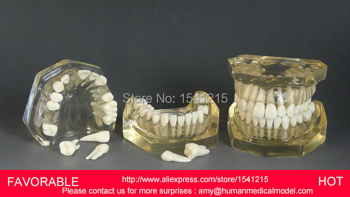 TOOTH CARIES MODEL,ORAL TRAINING MODEL,DENTAL CAST MODEL ,REMOVABLE TRANSPARENT DENTAL MODEL DENTITION-GASEN-DEN039 soarday tooth root canal restoration model oral dental training materials tooth nerve model