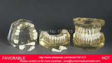 TOOTH CARIES MODEL,ORAL TRAINING MODEL,DENTAL CAST MODEL  ,REMOVABLE TRANSPARENT DENTAL MODEL DENTITION-GASEN-DEN039