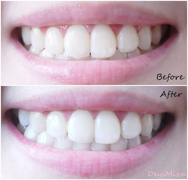 10 Pouches 20 Strips Crest Whitestrips 3d Advanced Vivid Luxe