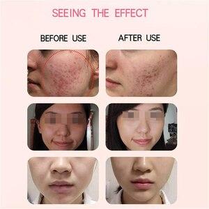 Image 5 - Lápiz de Plasma para tratamiento del acné, máquina de eliminación de cicatrices, antienvejecimiento, terapia de belleza, dispositivo de eliminación de espinillas, bolígrafo para cuidado de la piel