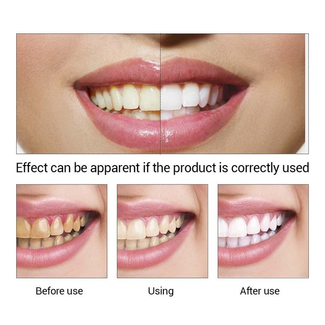 Teeth Whitening Pen Oral Hygiene Deep Cleansing Serum Removes Plaque Stains White Teeth Care Tooth Bleaching Dental Tools Skin Care