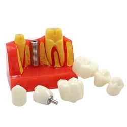 Dental Implant Four Times Teaching Teeth Model 4 Times Dental Resin Quartz Rubber Teeth Model Dentist Training Pathology Model