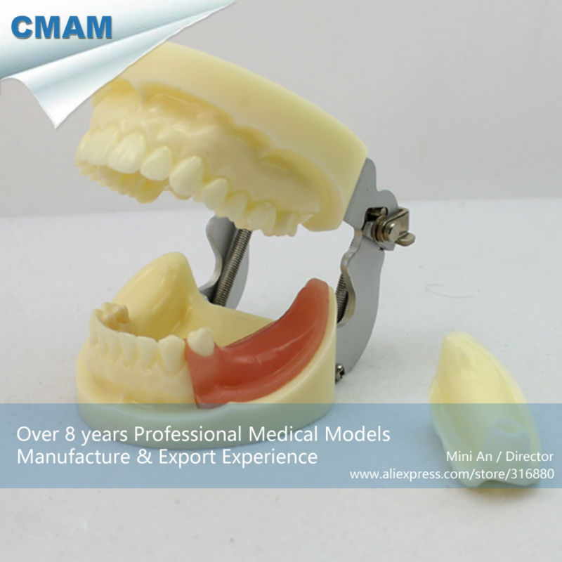CMAM-IMPLANT06 Implant Practice Jaw Model with Replaceable Implant Socket attachments retaining implant overdentures