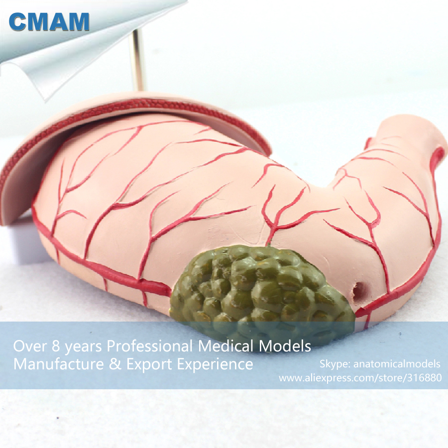 CMAM-STOMACH04 Medical Anatomy Human Stomach Gastric Disease Model ,  Medical Science Educational Teaching Anatomical Models human anatomical duodenum gall bladder disease anatomy medical model teaching resources