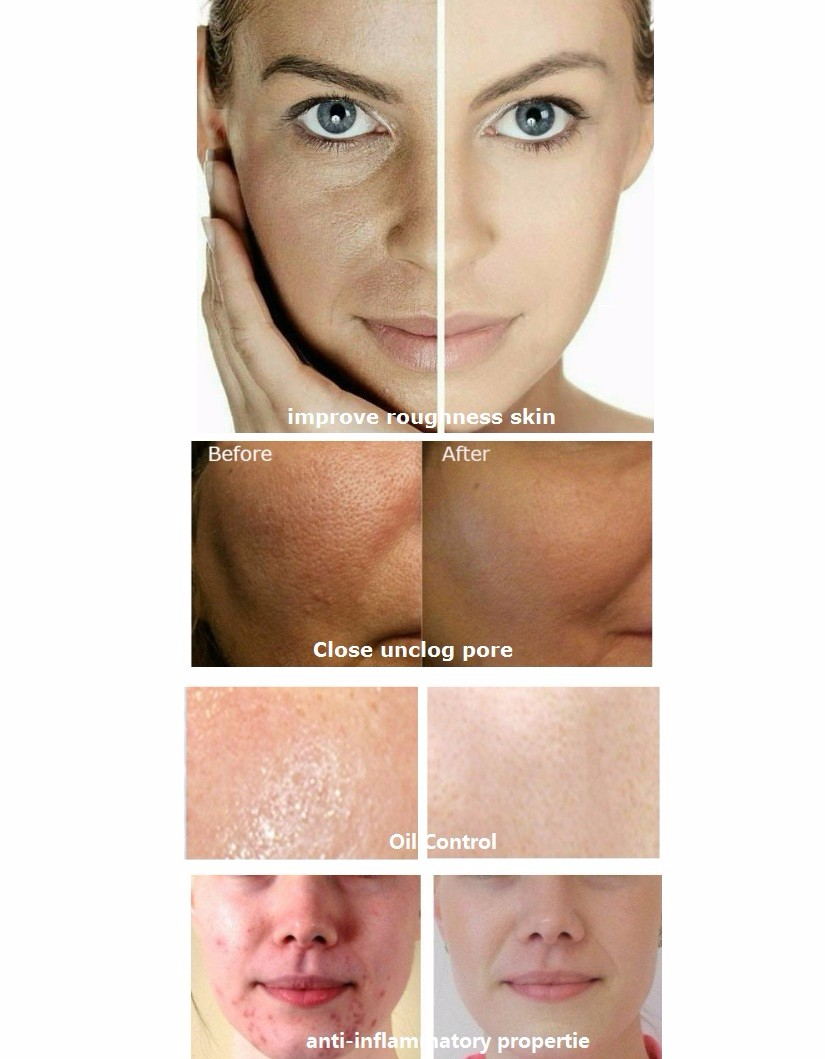 Laura serum with mezoroller: reviews of buyers and cosmetologists 31