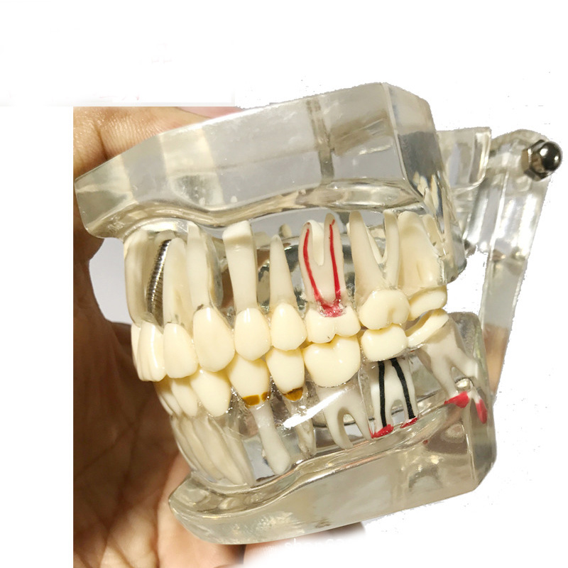 Dental Study Tooth Transparent Adult Pathological & Disease Teeth Model demonstration dental study tooth transparent adult children pathological teeth model lab equipment dentist teaching