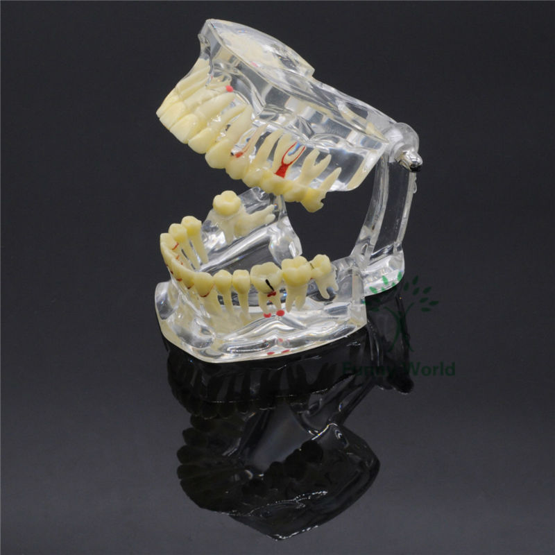 New Dental Implant Disease Tooth Pathological Extrusion Missing Teeth Model In a Box purnima sareen sundeep kumar and rakesh singh molecular and pathological characterization of slow rusting in wheat