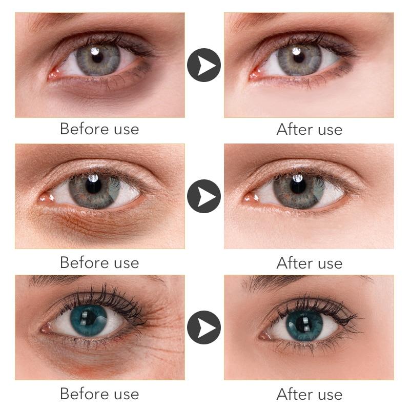 ROREC Hyaluronic Acid Anti Aging Against Puffiness Eye Serum Anti-Wrinkle Snail Collagen Remover Dark Circles Eye Cream Care 20g 2