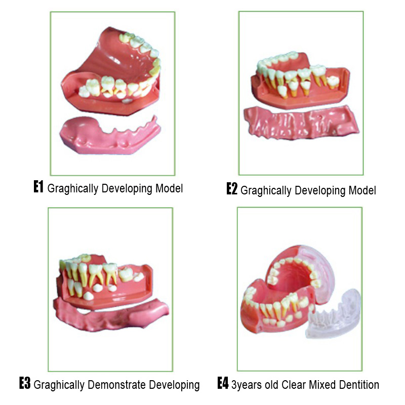 Dental Primary Teeth developing model and ortho teeth Anesthesia Extraction Model Root canal Model soarday children primary teeth alternating transparent model dental root clearly displayed dentist patient communication