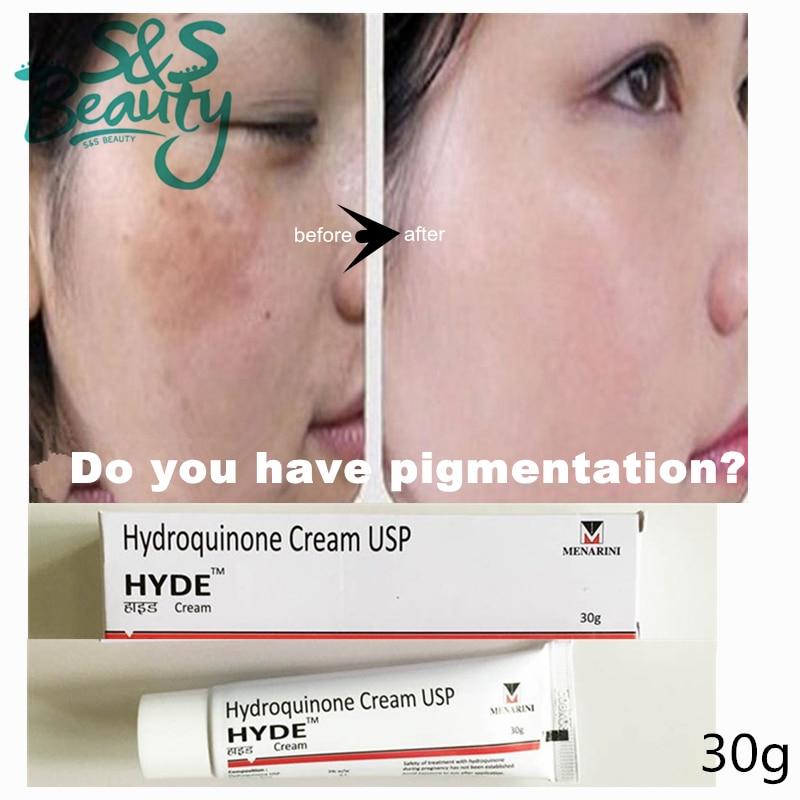 hydroquinone cream 3% whitening skin pigment spots acne scars lightening  remove dark spots pigmentation ageless bleaching S570 on Aliexpress.com |  Alibaba ...