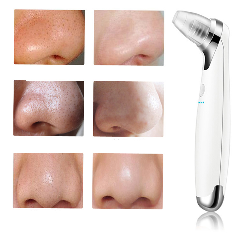 Face Pores Nose Blackhead Cleaner Dead Skin Peeling Removal Microdermabrasion Beauty Instruments Skin Care Facial Massager 30 facial spa skin care deeply pore cleansing diamond microdermabrasion blackhead remove skin lifting tightening beauty instruments