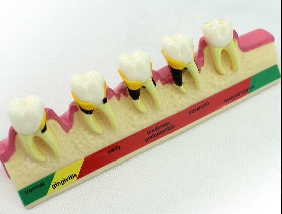 Resin oral periodontal disease classification model gingivitis degree chronic periodontitis model freeshipping si4463 wireless module long distance wireless module 2000m