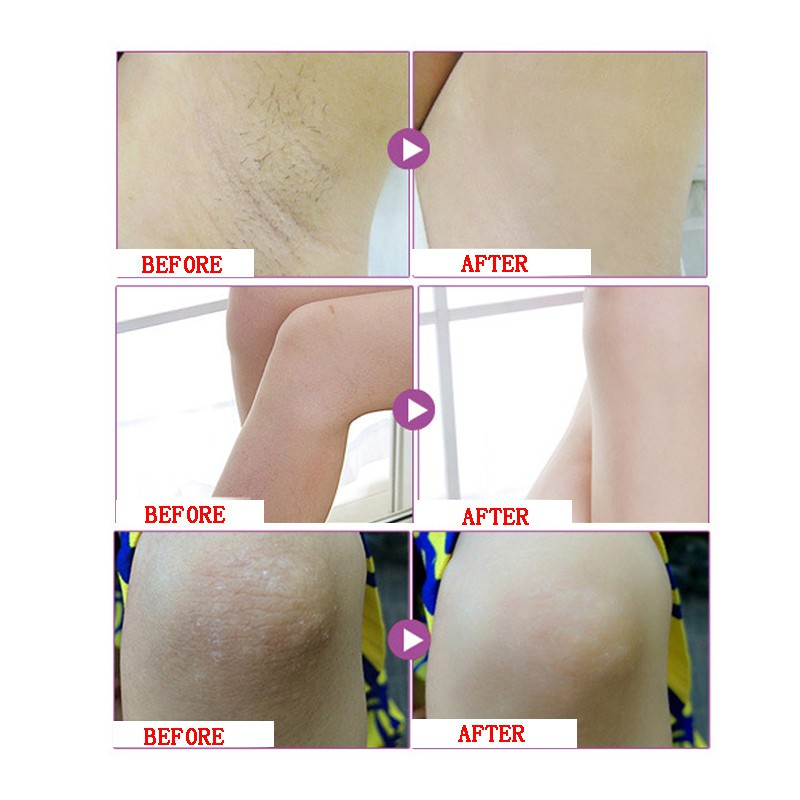 Beauty & Health Lower Price with Strong Effect Whitening Cream Between Legs Knees Private Parts Whitening Formula Armpit Whitener Intimate Hot Sale