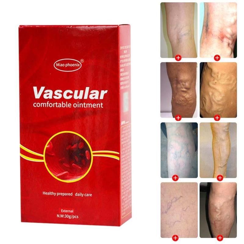 Treatment-Cream Remedy-Removal Ointment-Vasculitis Varicosity Spider-Veins Pain Phlebitis