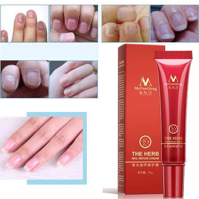 Chinese Fungal Nail Treatment Essence and Foot Whitening Toe Fungus ...