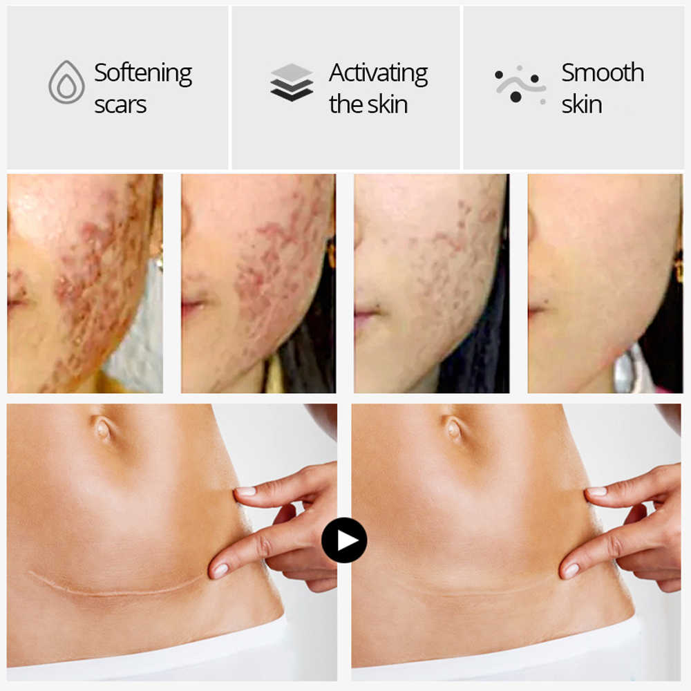 Crocodile réparation cicatrice sérum traitement de l'acné vergetures élimination acné cicatrice blanchiment pour les taches soins de la peau