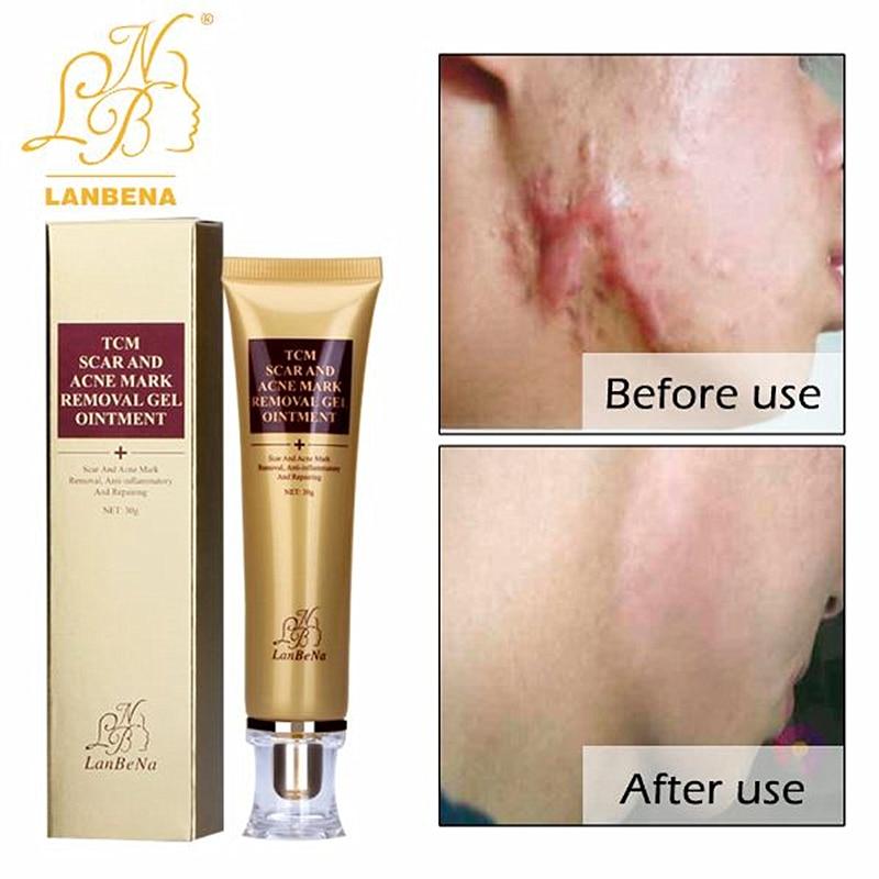 LANBEN Entfernung Von Narben akne Hautpflege ginseng-extrakt gegen Schwarze Punkte Creme gesichts mitesser bleichen creme 30 ml