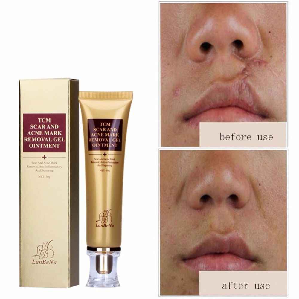 Cream scar removal oily skin in with 2021 for best dating ✌️ india acne best acne