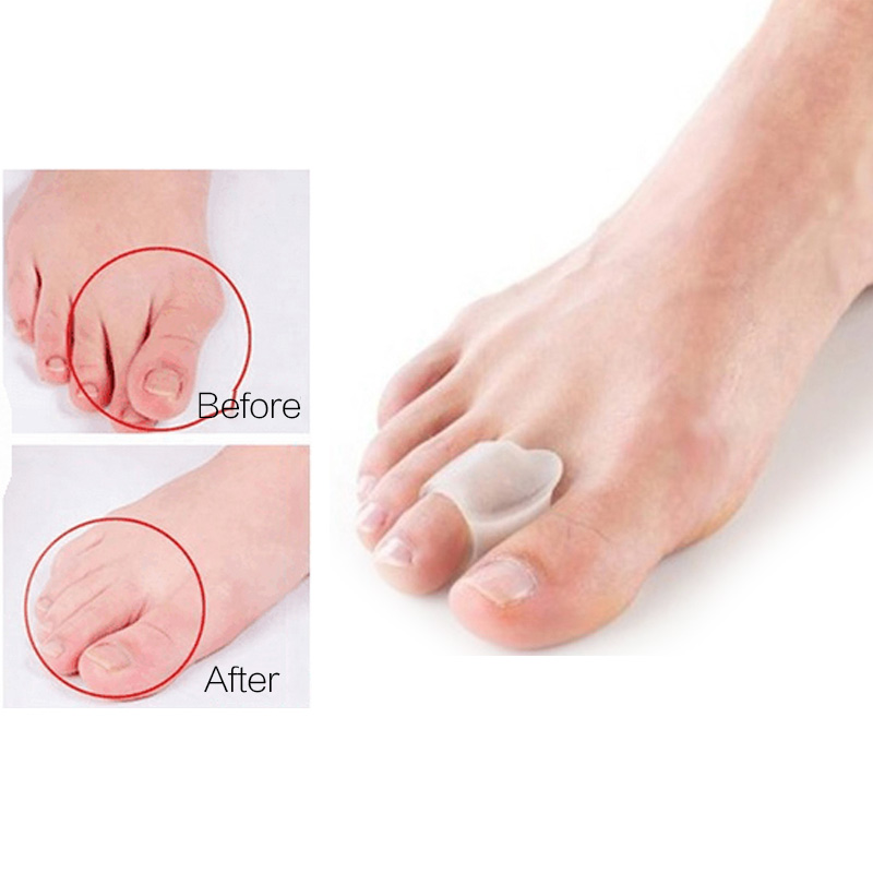 1 Pair Bone Thumb Toe Separators Health Care Hallux Valgus Correction Pedicure Device Orthopedic Bunion Straightener Protector