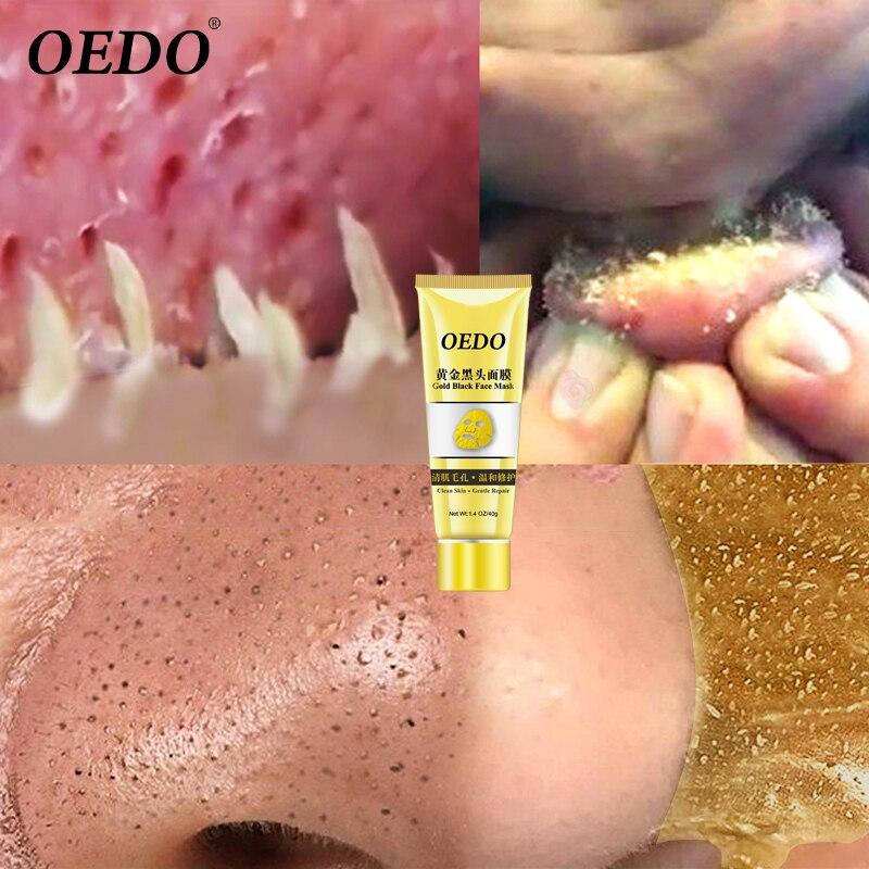 Oedo золото удалить угри маска сужает поры улучшить грубая маска для носа против черных точек угря маска для удаления угрей увлажняющий лицо крем