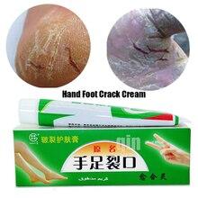 Crack-Cream Exfoliating-Foot-Cream Anti-Dry-Crack Heel-Chapped Ointment Hand-Foot Cosmetics