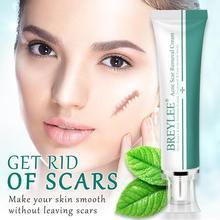 BREYLEE крем для удаления шрамов от акне, крем для лица, для восстановления кожи, для ухода за кожей, для лечения шрамов и акне, Для Удаления растяжек, отбеливающий крем, 30 г