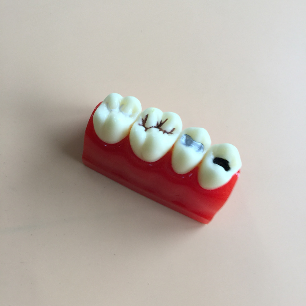 Dental Pit and Fissure Sealing Treatment Teeth Tooth Study Learn Model hot teeth development models teeth and jaw development model dental teeth models