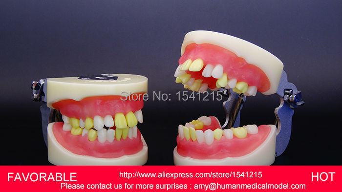 DENTAL CARE ,TEETH DENTAL DENTURES EACHING TOOTH MODEL DENTAL TEETH MODEL,DENTITION MODEL-GASEN-DEN005 dental teaching model adult dental teeth model anatomiacl tooth models mouth oral care cleft lip stitched model gasen den0020