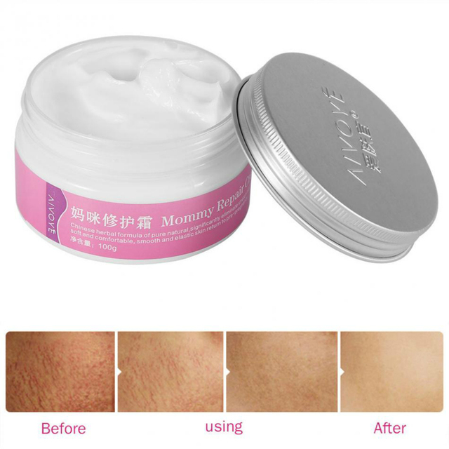 AFY Mommy Repair Cream Strong Effective Stretch Mark Removal Maternity Body Skin Care