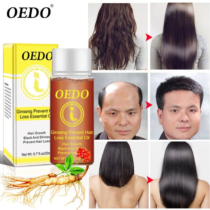 Женьшень роста волос анти-офф эфирное масло ремонт повреждения волос скорость способствует росту волос питают толстые корни Восстанавлива...