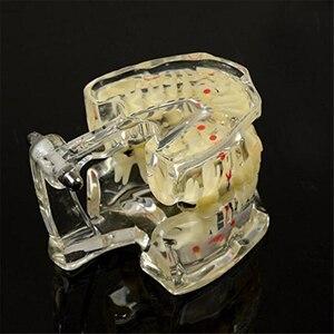 Image 5 - קידום שיניים לימודים שקוף למבוגרים הפתולוגי שיניים דגם שיניים מעבדה ציוד רופא שיניים הוראה