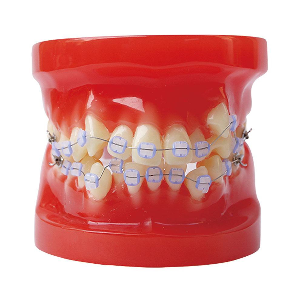 All Ceramic Bracket Orthodontic Model 28 Unit Teeth for Dentist to Communicate With Patients and Study teeth orthodontic model ceramic braces wrong jaw demonstration model orthodontics practice model