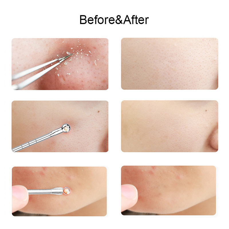 Blackhead Comedone Acne Extractor Remover Needles Tool Kit