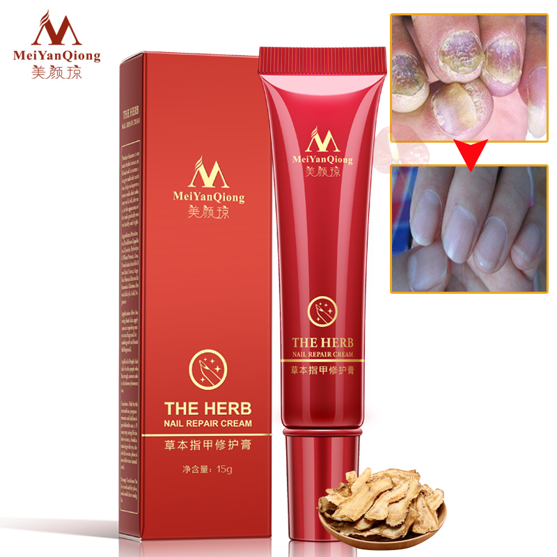 2018 New MeiYanQiong Brand Nail Foot Protector Skin Care Cream 15g Nail Fungus Treatment the Herb Nail Repair Cream isheto 15g