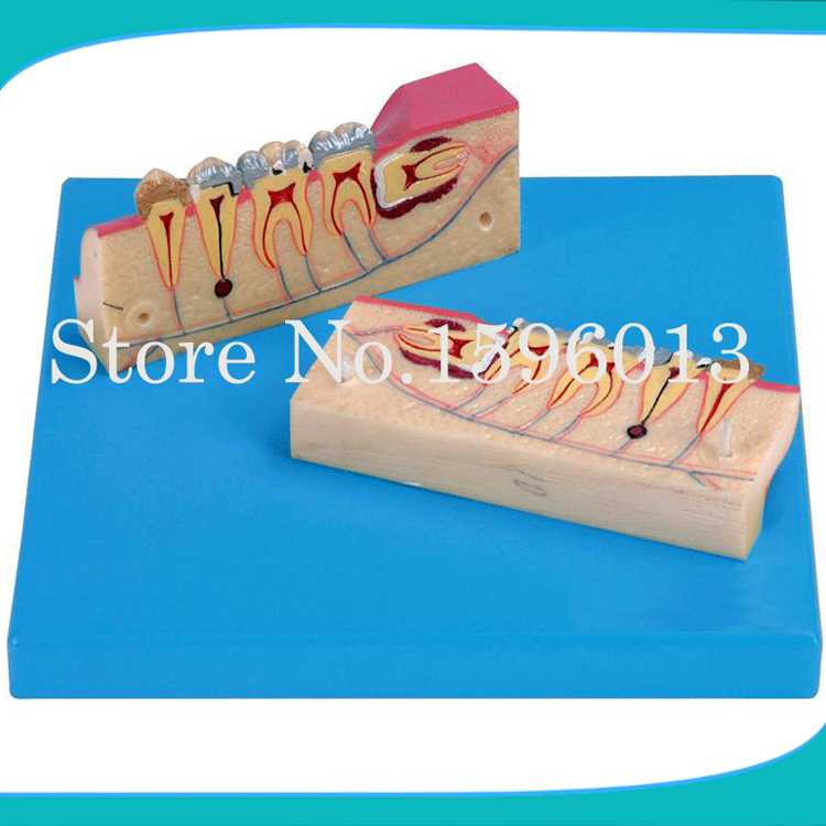 Dissected Model of Teeth Tissue,Teeth tissue decomposition model,Teeth Organizational Model teeth model blue dental orthodontics communication model with 4 types of brackets