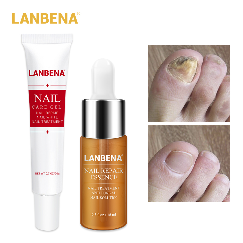 LANBENA Nail Care Gel+Nail Repair Essence Serum Nail Treatment Remove Onychomycosis Toe Nail Nourishing Hand And Foot Care 2PCS Онихомикоз