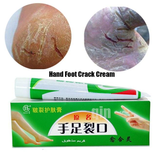 Руки ноги трещины крем каблук потрескавшиеся пилинг для ног и рук ремонта против сухой Crack кожи китайских лекарственных мазь крем для кожи уход