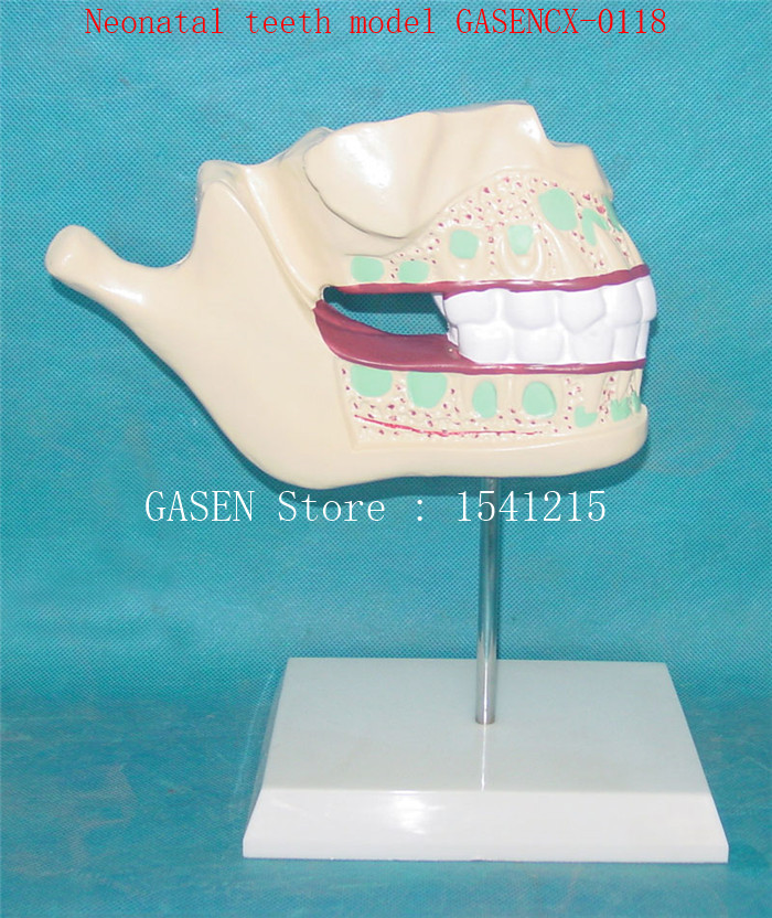 Nursing oral dental model Medical model Nursing tooth model Oral tooth model baby Child teeth Neonatal teeth model GASENCX-0118 hot teeth development models teeth and jaw development model dental teeth models