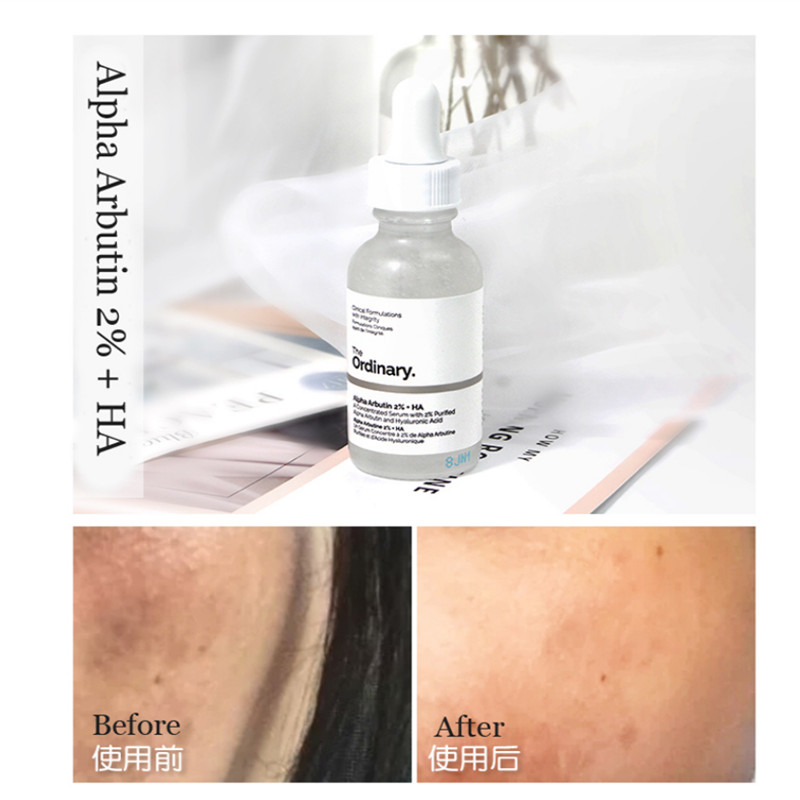 The Ordinary Whitening Face Serum Remove Dark Spots Alpha Arbutin 2 Ha 30ml Concentrated Freckle Hyper Pigmentation Buy At The Price Of 2 80 In Aliexpress Com Imall Com
