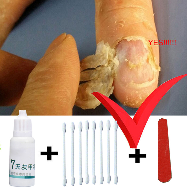 Toe Nail Fungus Treatment Anti Fungal Infection Yellow Essence Removal Care Clear Cure