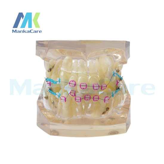 Manka Care - 24 pcs Tooth, all ceramic bracket Oral Model Teeth Tooth Model manka care ortho with edgewise bracket produced by imported resins without articulator oral model teeth tooth model
