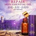Бренд MeiYanQiong Природный Шрам Питание Сущность, Экстракт Крем Для Лица 10 МЛ Увлажняющий Отбеливание Нефть Управления Акне Лечение Уход