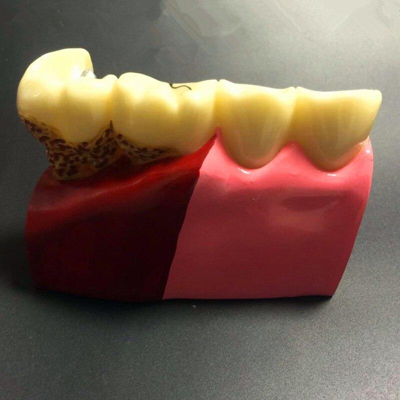 Modèle d'enseignement des pathologies des dents dentaires, dentiste des dents blanchissant pour l'enseignement des sciences médicales - 3