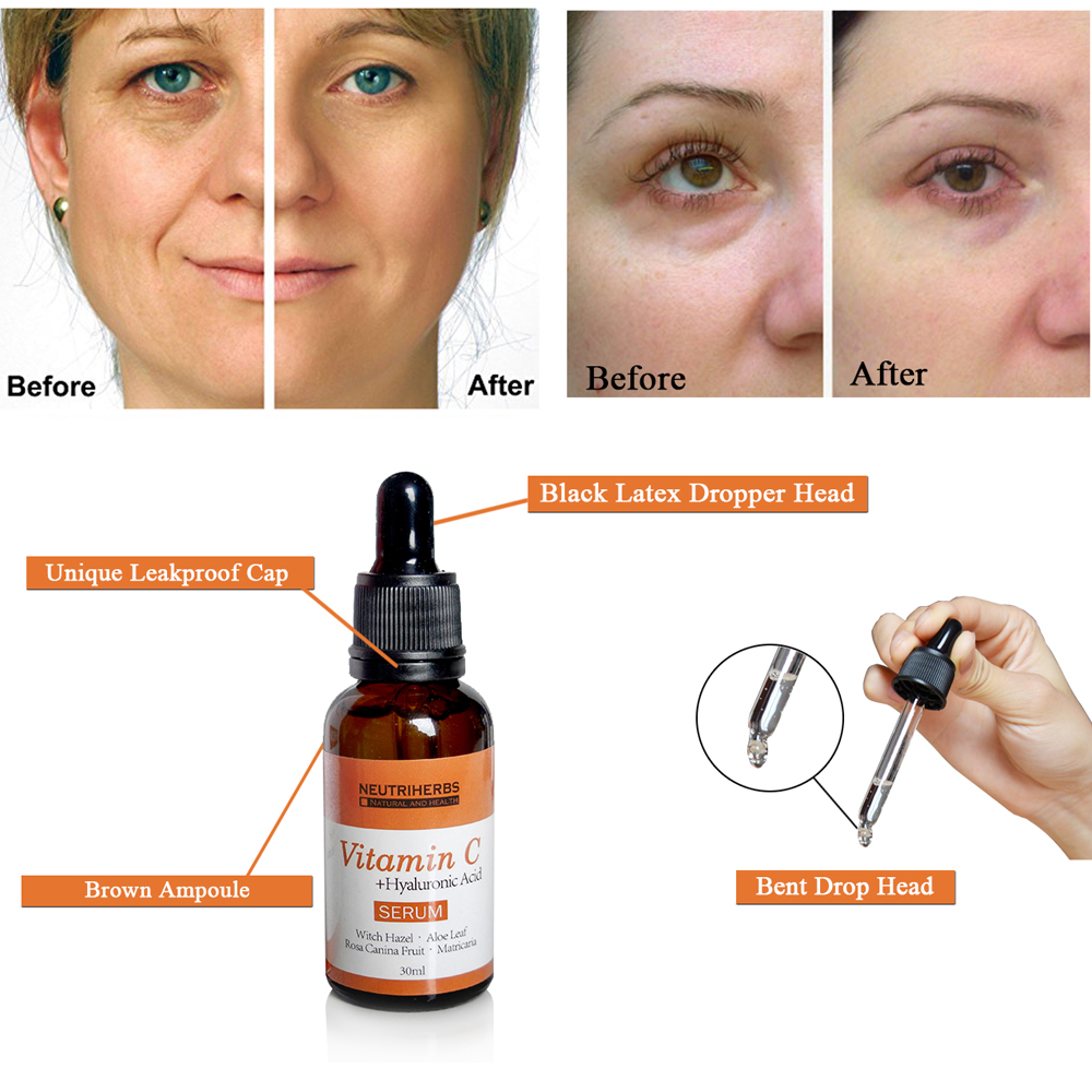 vitamin c serum for skin lightening