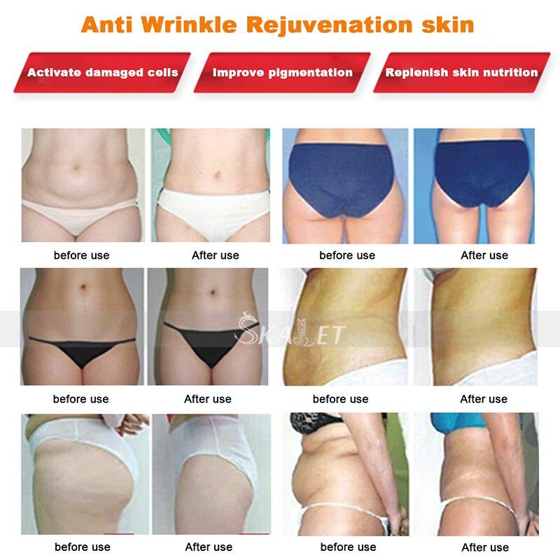 terapia da remoção da pele do emagrecimento da beleza