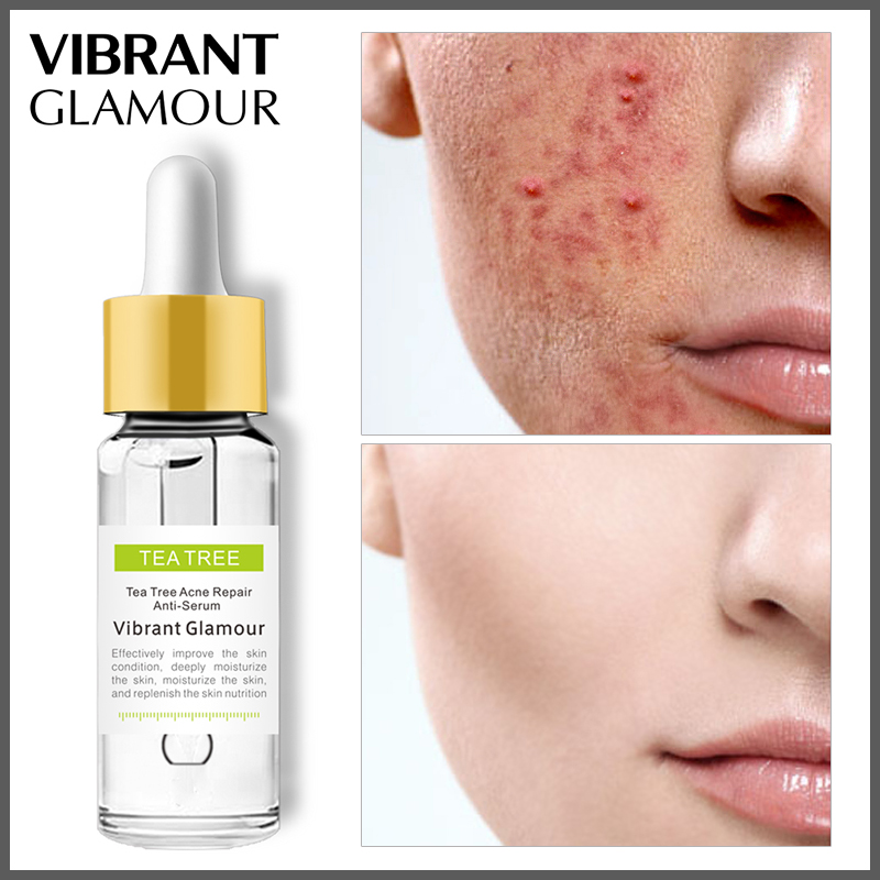 VIBRANT GLAMOUR Tea Tree Acne Eliminating Face Serum Remove Acne Scar  Shrink Pores Oil Control Skin Care Whitening Moisturizing